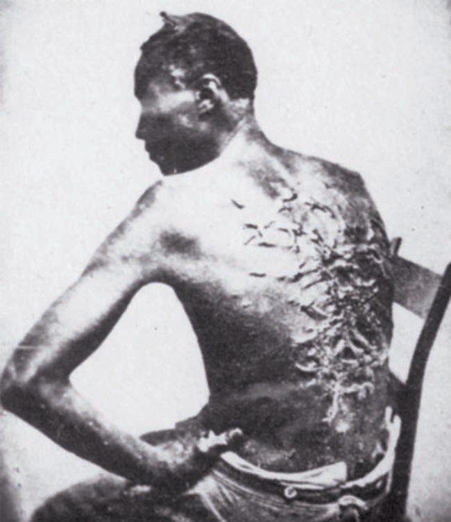 PHOTO: Scars of a whipped Mississippi slave, photo taken (April 2, 1863, Baton Rouge, Louisiana, USA. Archive national des États-Unis - National Archives and Records Administration. Original photographers: McPherson and Oliver. Part of the Blakeslee Collection, apparently collected by John Taylor of Hartford, Connecticut, USA